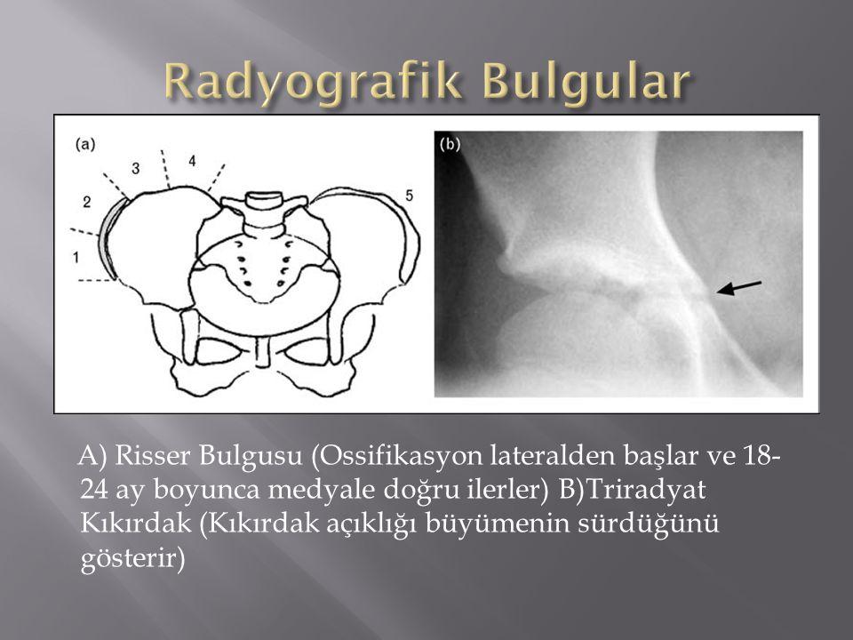 Radyografik Bulgular