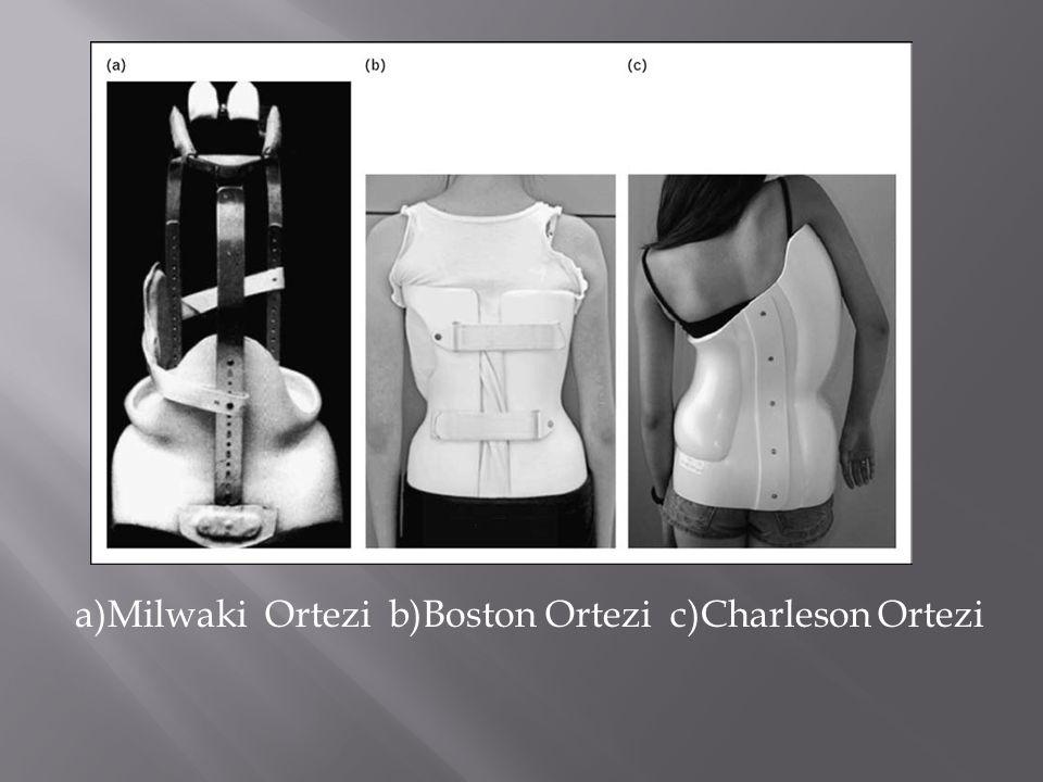 a)Milwaki Ortezi b)Boston Ortezi c)Charleson Ortezi