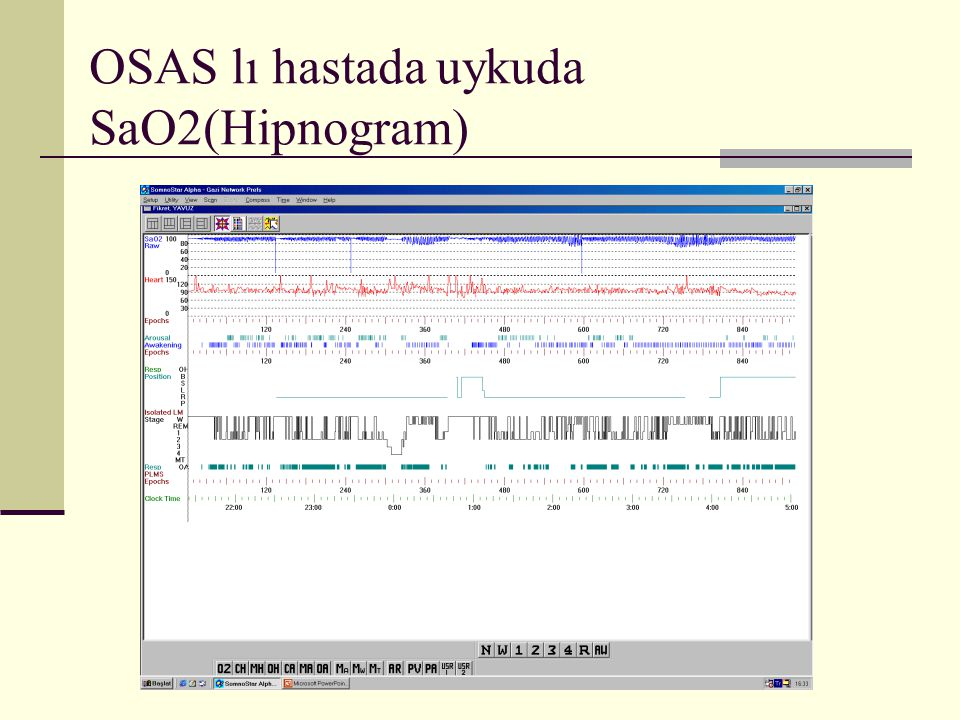 OSAS lı hastada uykuda SaO2(Hipnogram)