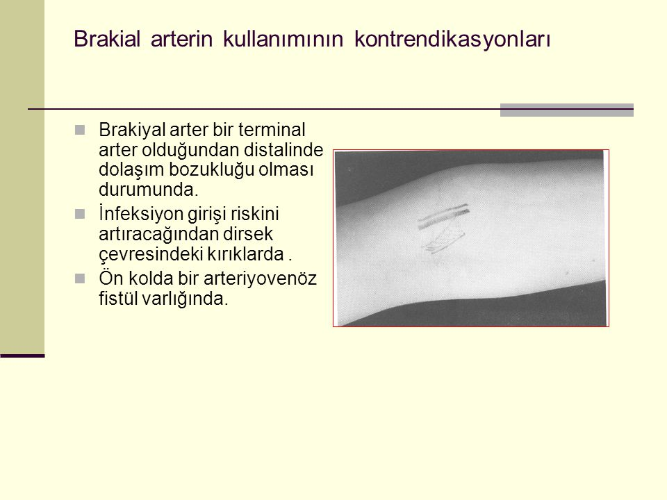 Brakial arterin kullanımının kontrendikasyonları