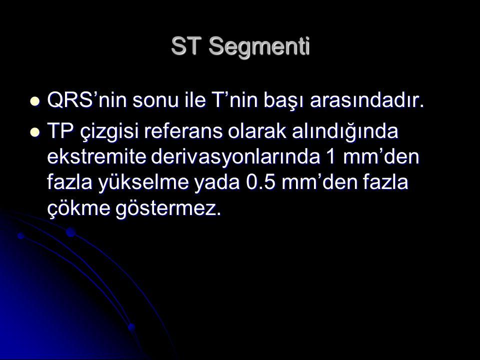 ST Segmenti QRS'nin sonu ile T'nin başı arasındadır.