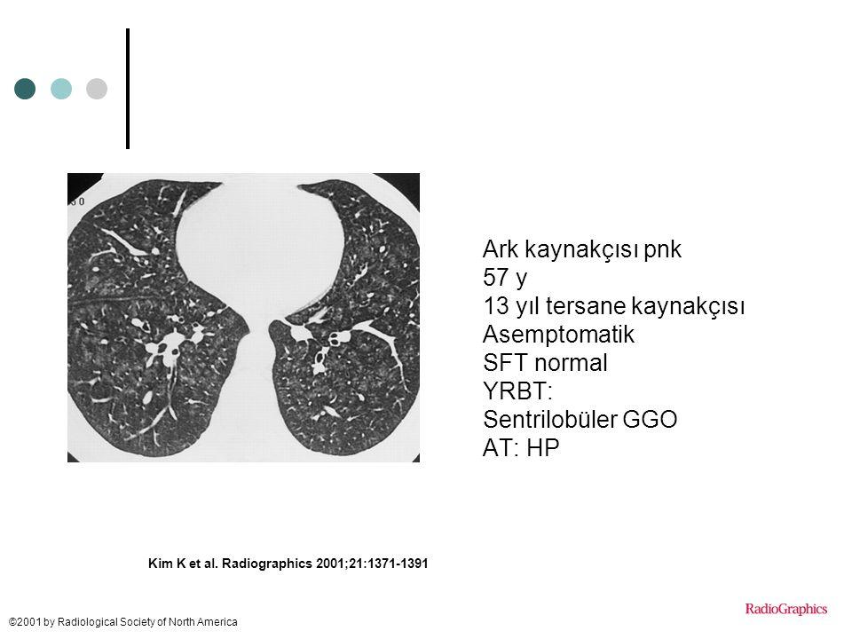 13 yıl tersane kaynakçısı Asemptomatik SFT normal YRBT: