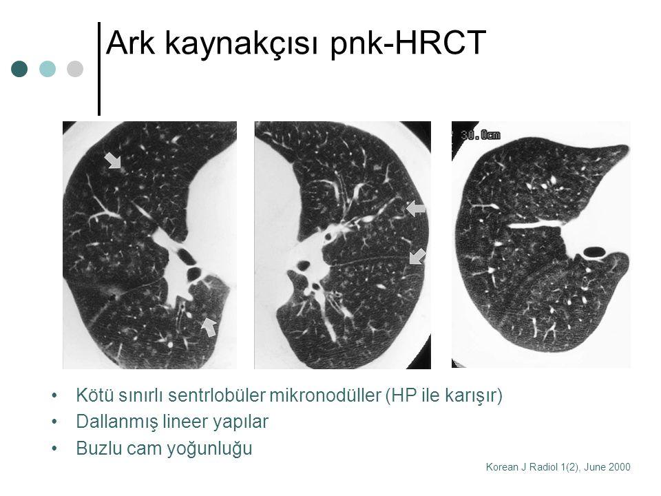 Ark kaynakçısı pnk-HRCT