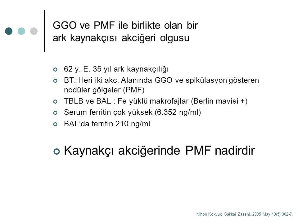 GGO ve PMF ile birlikte olan bir ark kaynakçısı akciğeri olgusu