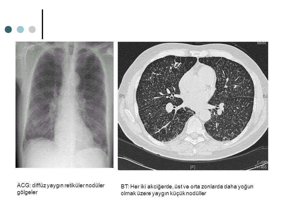 BT: Her iki akciğerde, üst ve orta zonlarda daha yoğun olmak üzere yaygın küçük nodüller