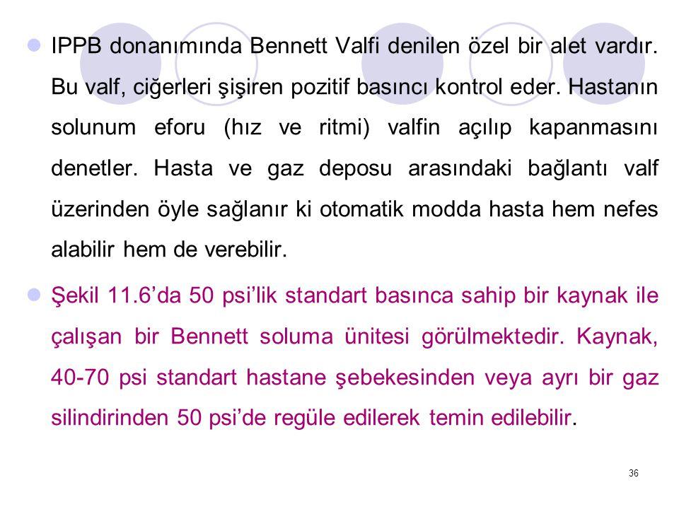 IPPB donanımında Bennett Valfi denilen özel bir alet vardır