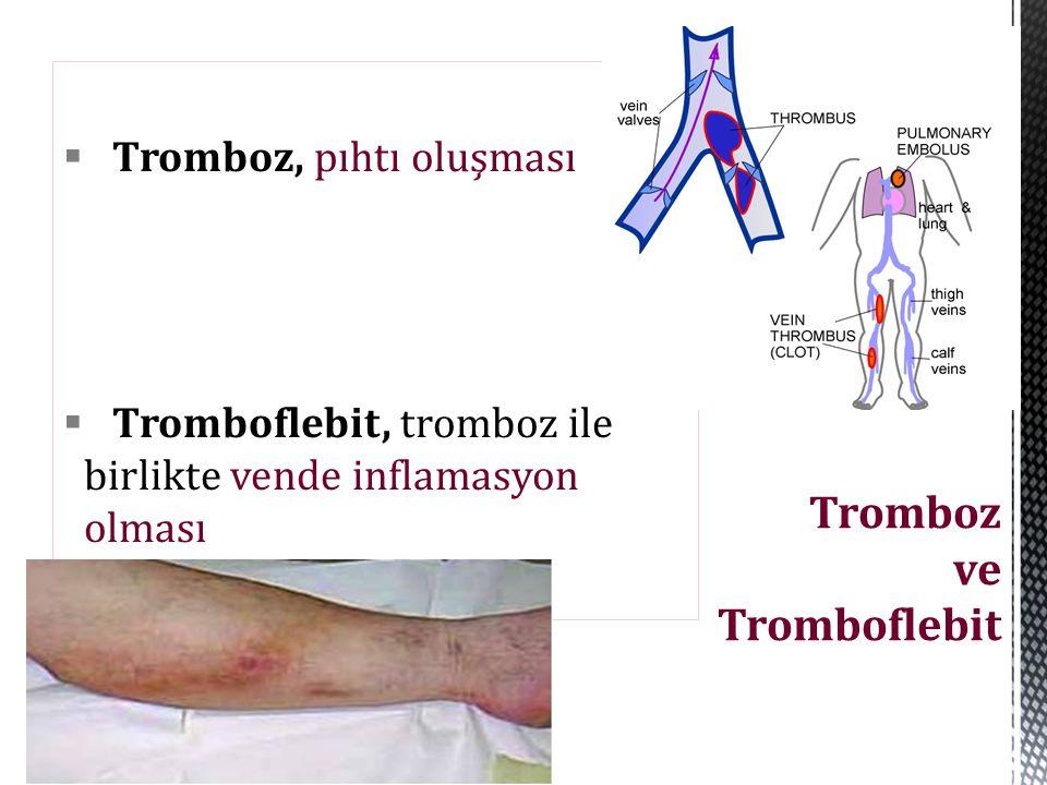 Tromboz ve Tromboflebit