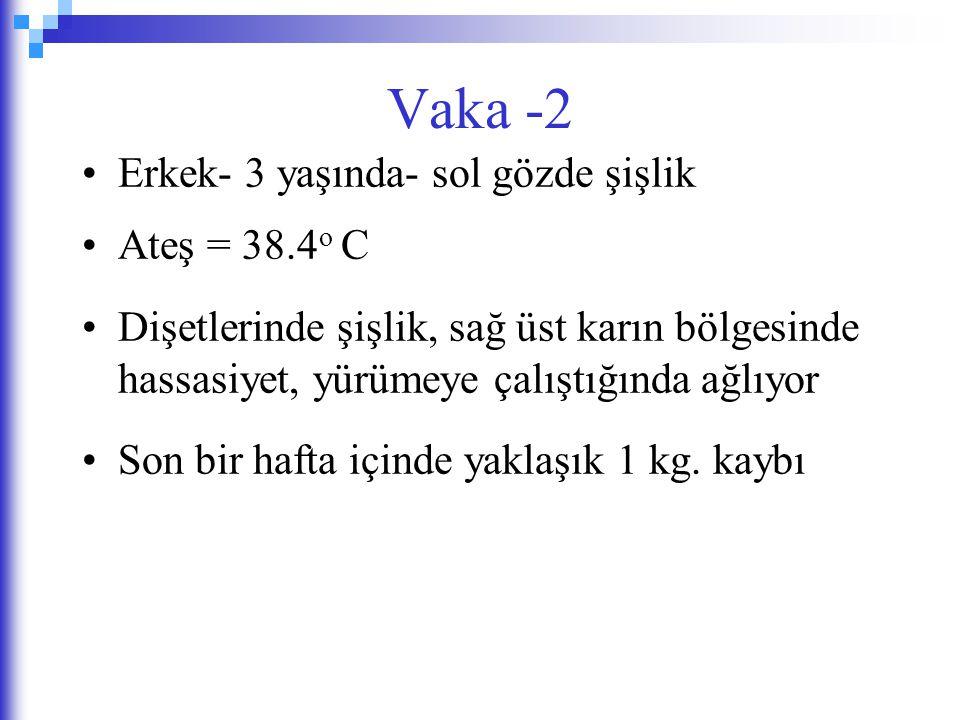 Vaka -2 Erkek- 3 yaşında- sol gözde şişlik Ateş = 38.4o C