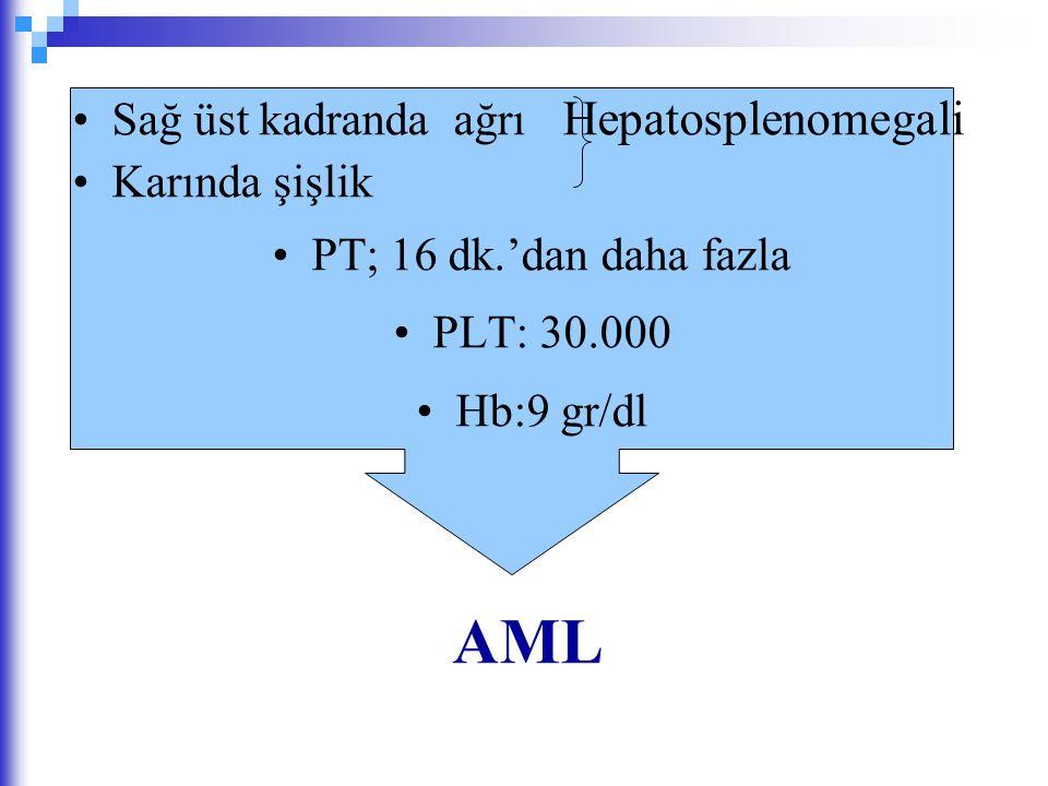 AML Sağ üst kadranda ağrı Hepatosplenomegali Karında şişlik