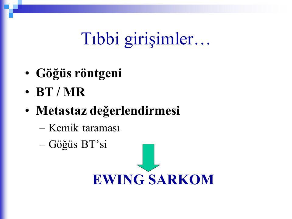 Tıbbi girişimler… EWING SARKOM Göğüs röntgeni BT / MR