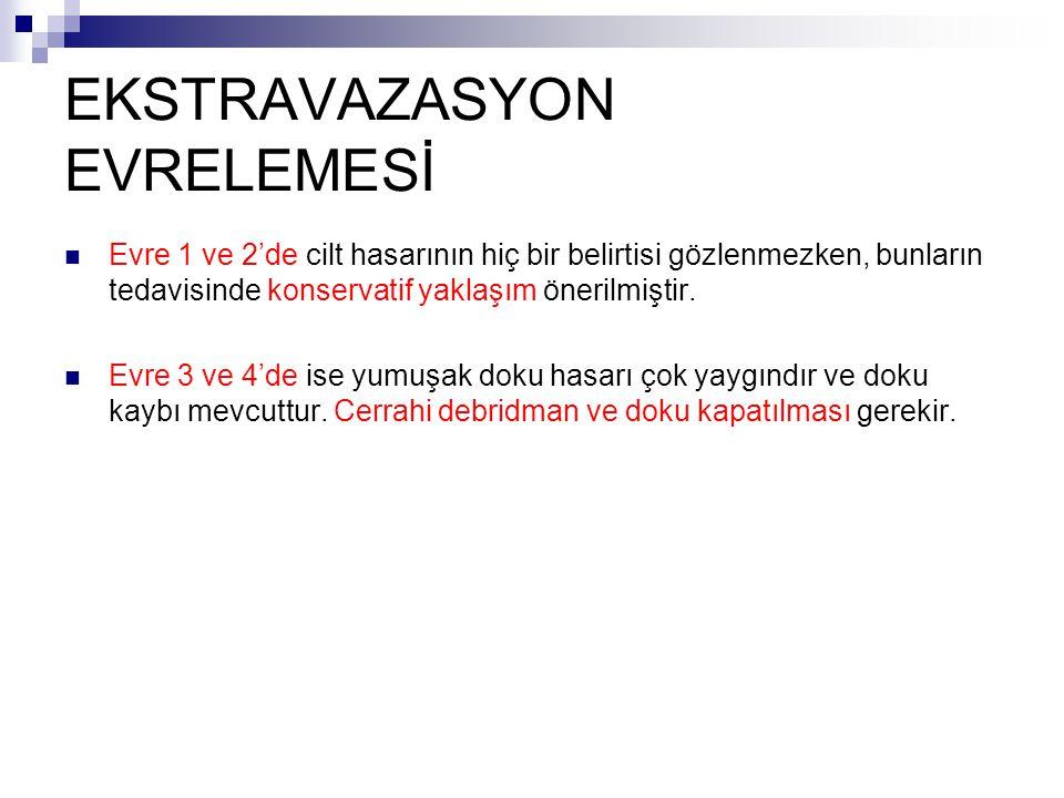 EKSTRAVAZASYON EVRELEMESİ