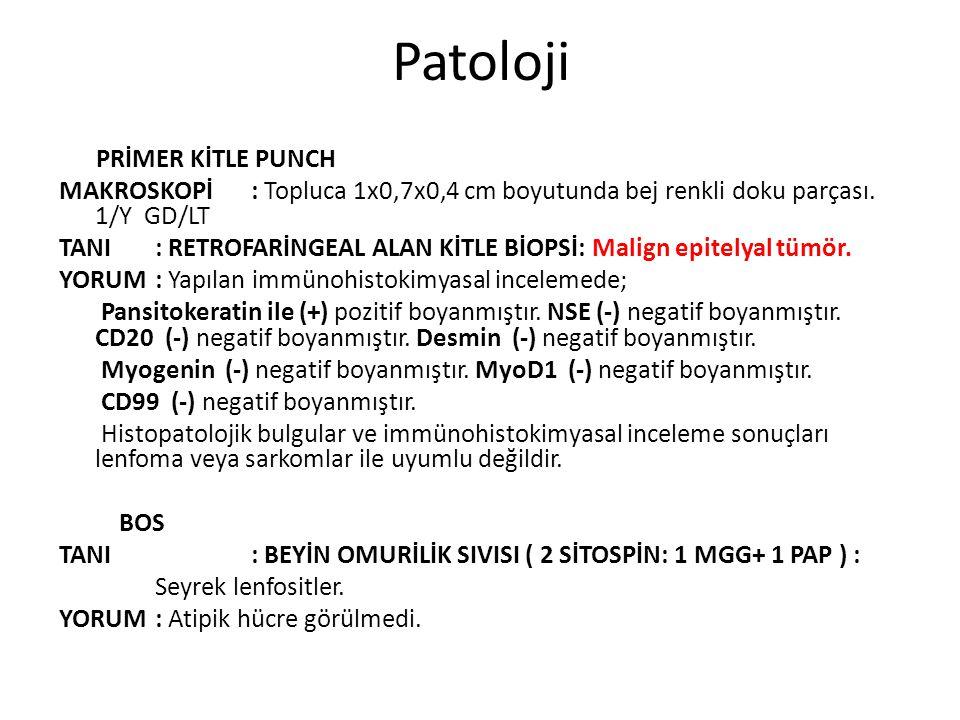 Patoloji PRİMER KİTLE PUNCH. MAKROSKOPİ : Topluca 1x0,7x0,4 cm boyutunda bej renkli doku parçası. 1/Y GD/LT.
