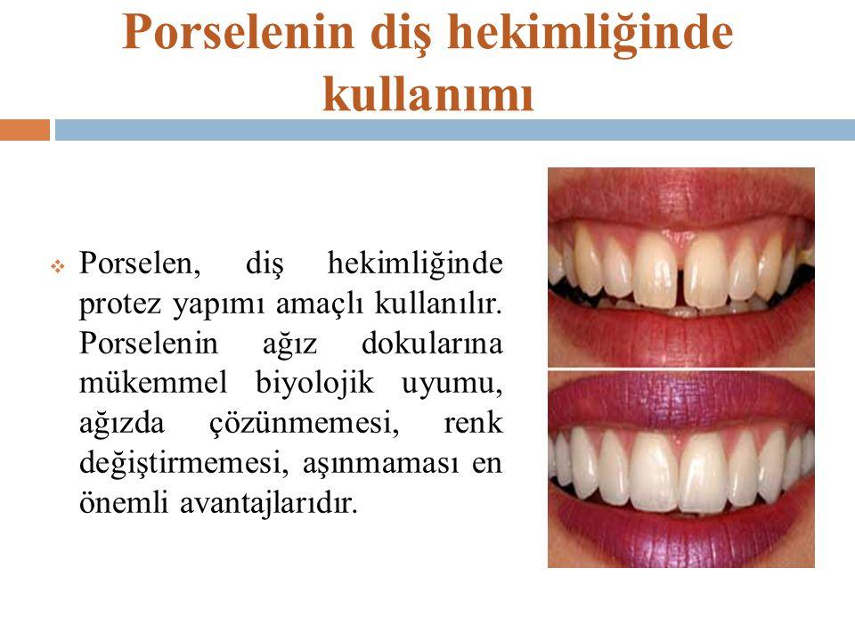 Porselenin diş hekimliğinde kullanımı