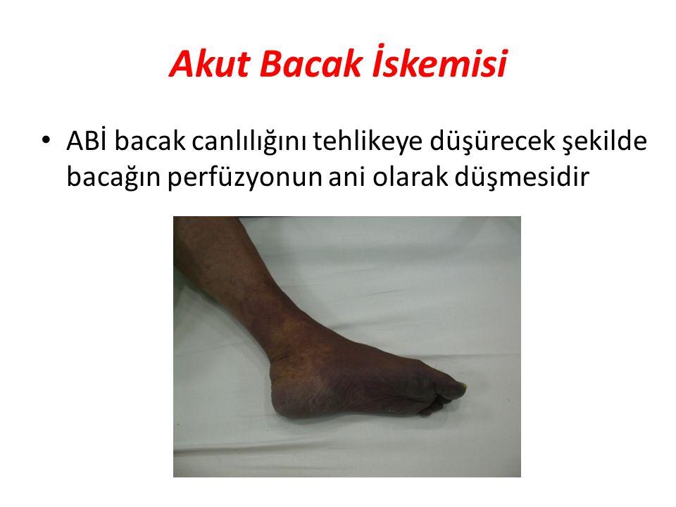 Akut Bacak İskemisi ABİ bacak canlılığını tehlikeye düşürecek şekilde bacağın perfüzyonun ani olarak düşmesidir.