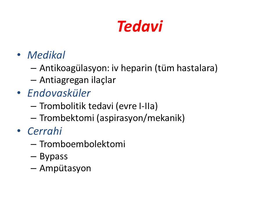 Tedavi Medikal Endovasküler Cerrahi