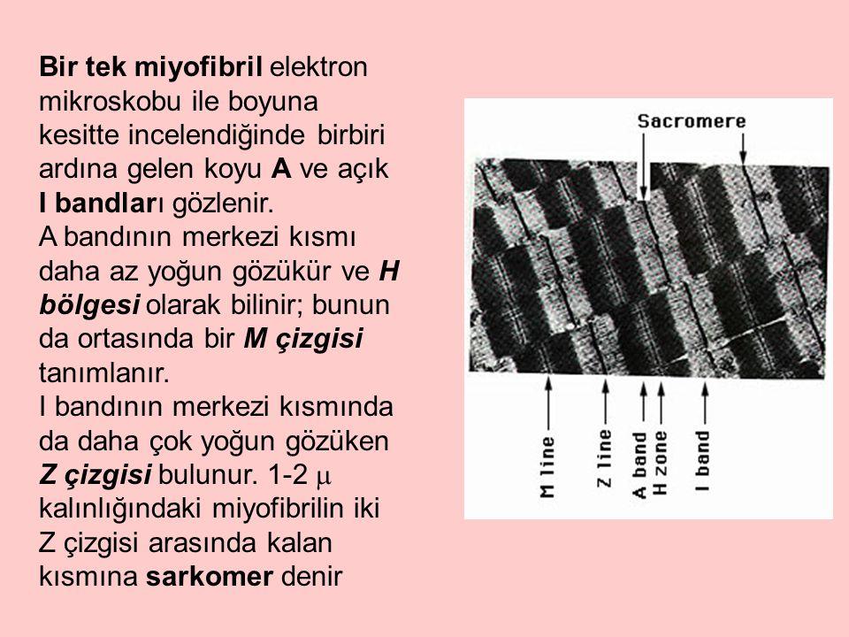 Bir tek miyofibril elektron mikroskobu ile boyuna kesitte incelendiğinde birbiri ardına gelen koyu A ve açık I bandları gözlenir.