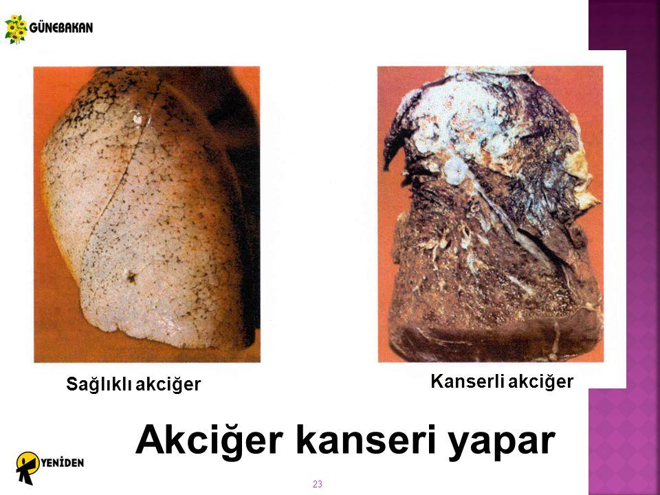 Sağlıklı akciğer Kanserli akciğer Akciğer kanseri yapar