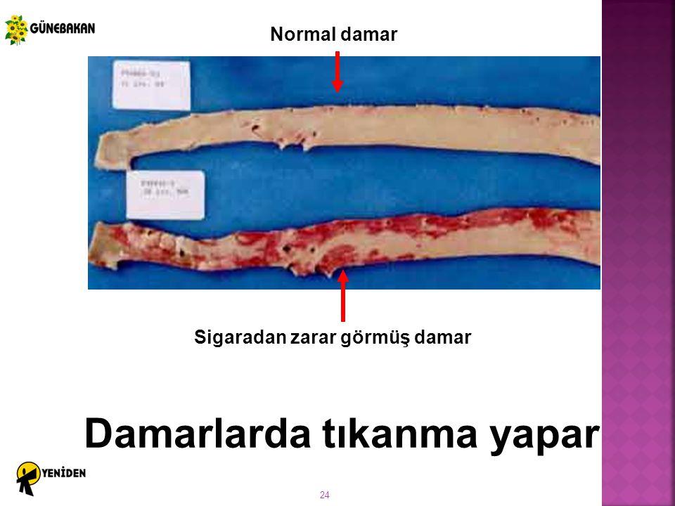 Sigaradan zarar görmüş damar Damarlarda tıkanma yapar