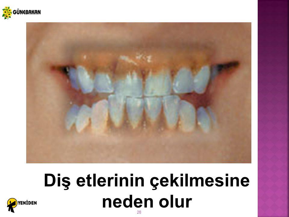 Diş etlerinin çekilmesine neden olur