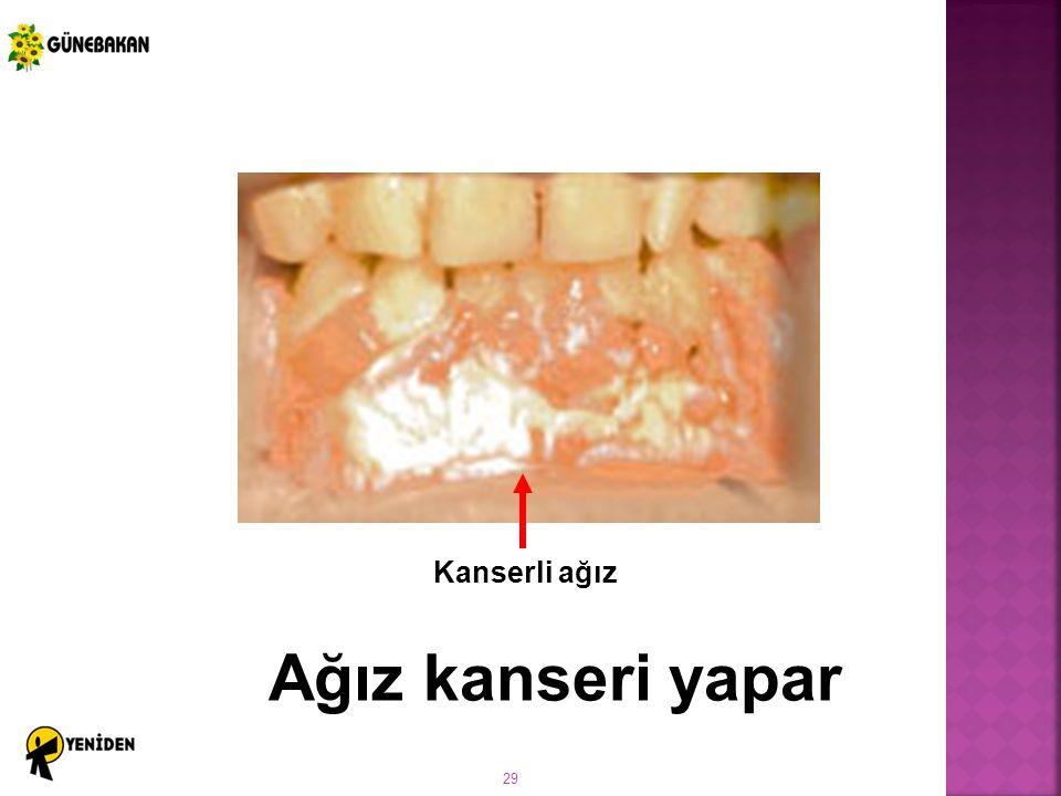 Kanserli ağız Ağız kanseri yapar