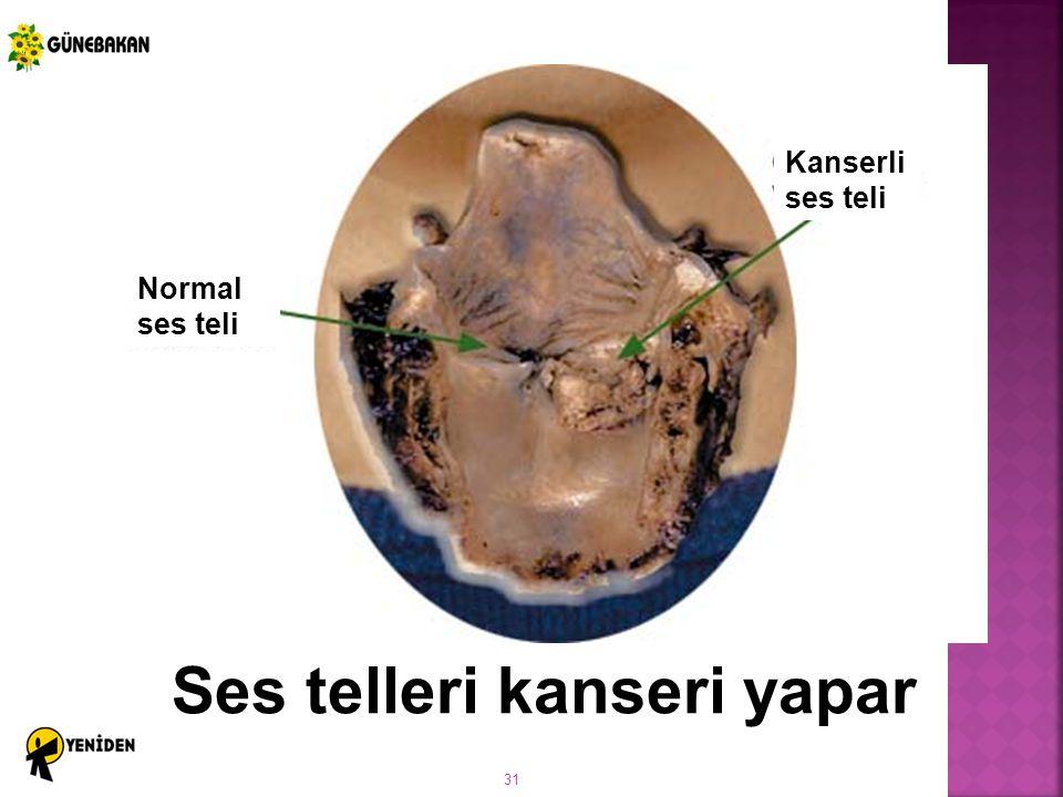 Ses telleri kanseri yapar