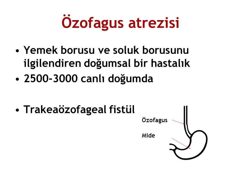 Özofagus atrezisi Yemek borusu ve soluk borusunu ilgilendiren doğumsal bir hastalık. 2500-3000 canlı doğumda.