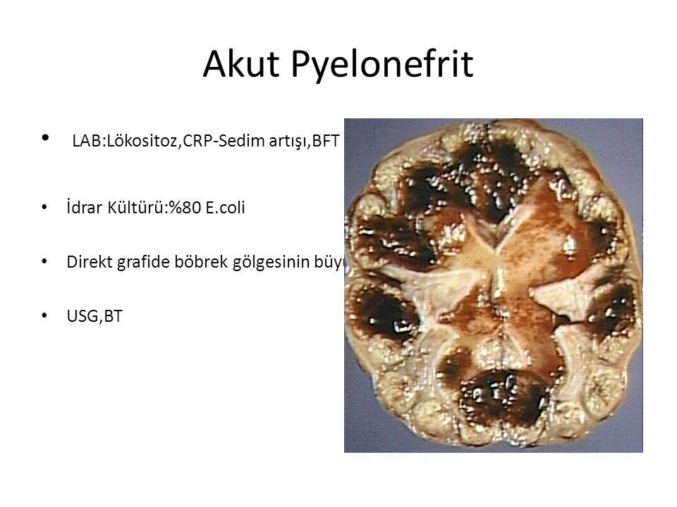 Akut Pyelonefrit LAB:Lökositoz,CRP-Sedim artışı,BFT genelde normal