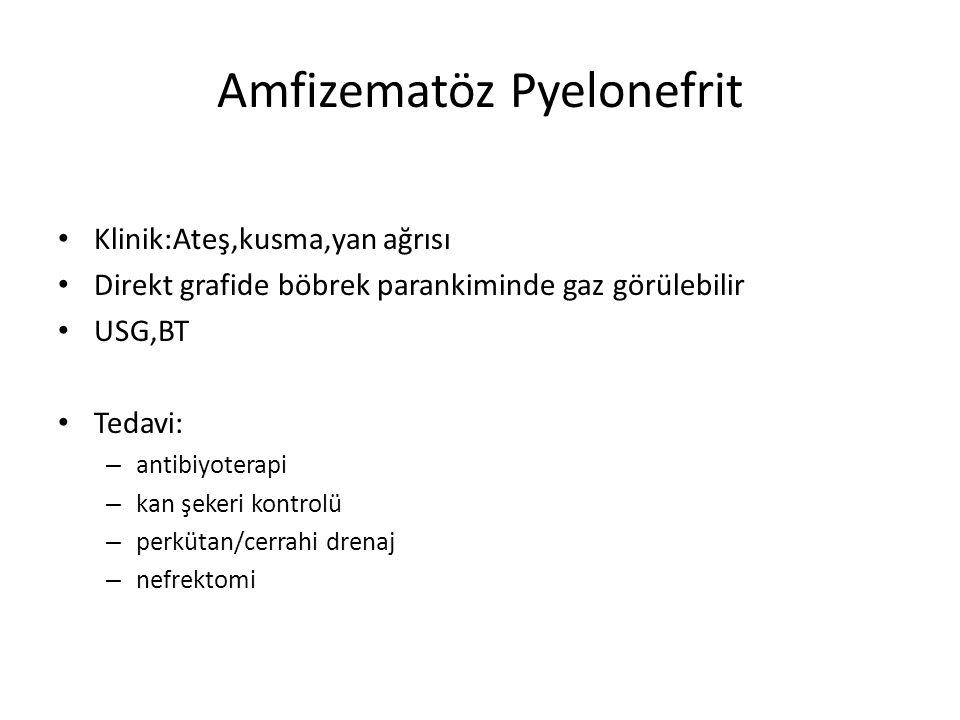 Amfizematöz Pyelonefrit