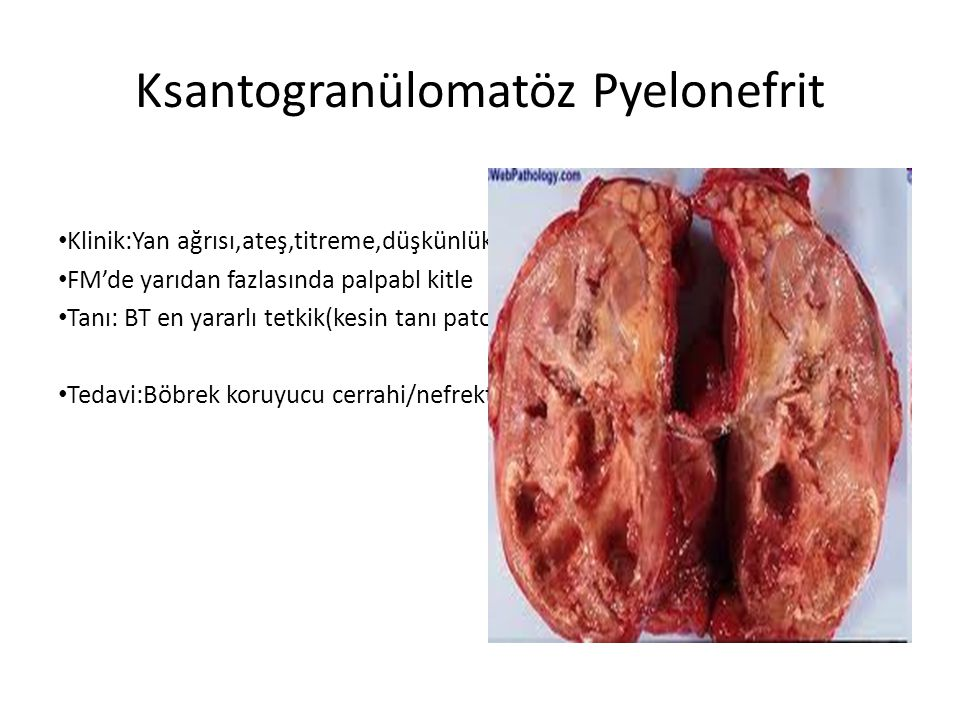 Ksantogranülomatöz Pyelonefrit