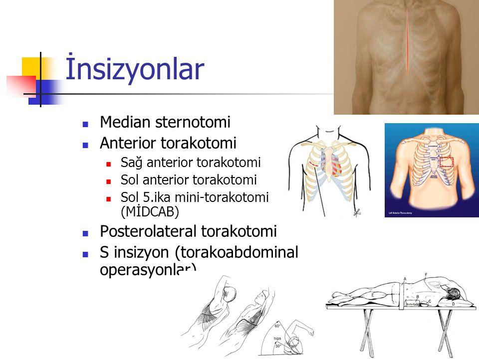 İnsizyonlar Median sternotomi Anterior torakotomi