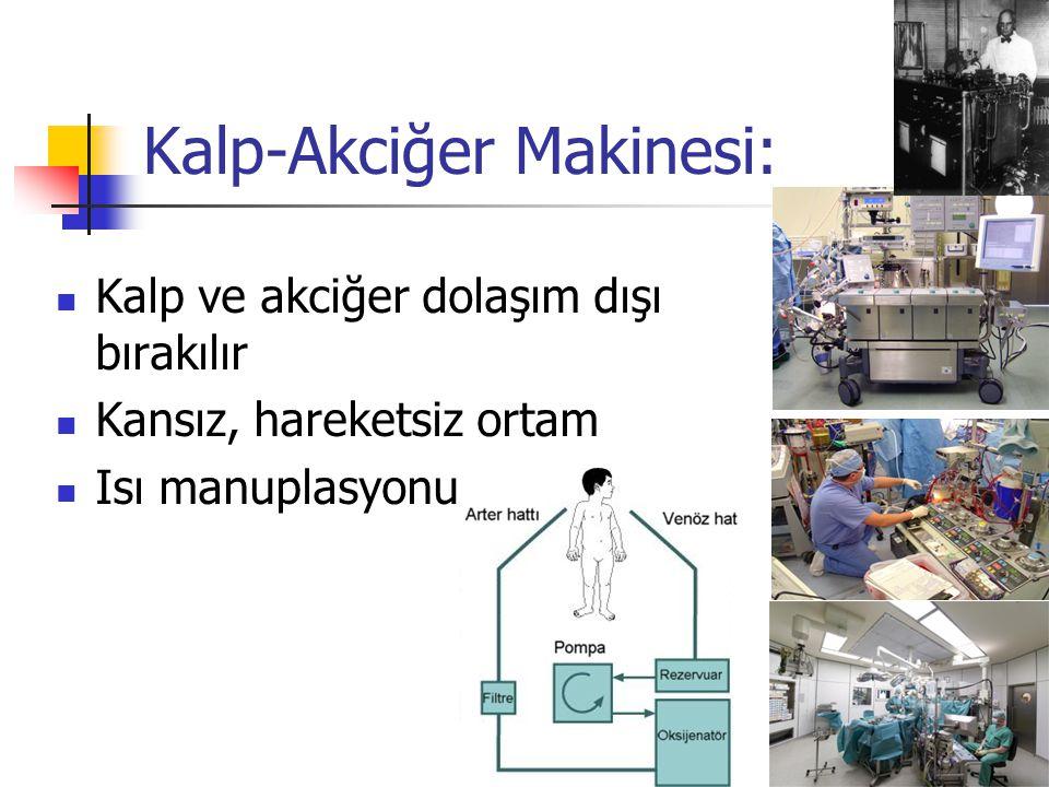 Kalp-Akciğer Makinesi: