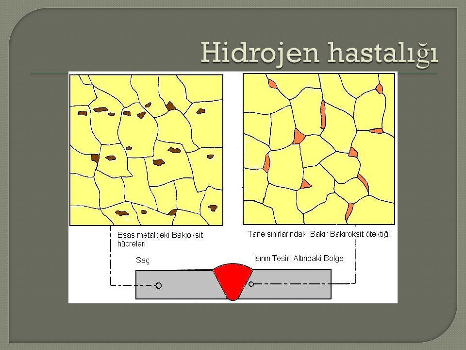 Hidrojen hastalığı
