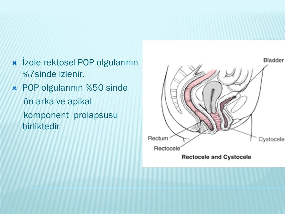 İzole rektosel POP olgularının %7sinde izlenir.