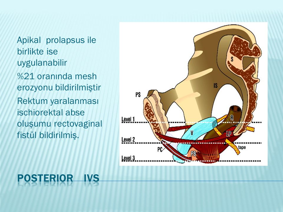 Posterior IVS Apikal prolapsus ile birlikte ise uygulanabilir