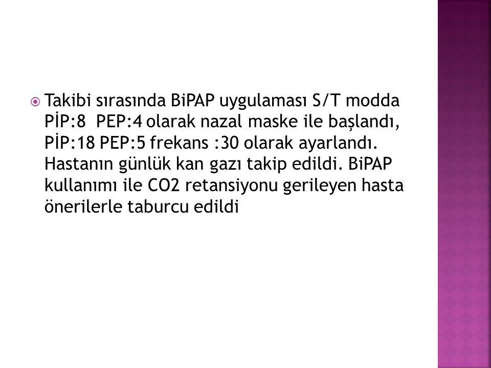 Takibi sırasında BiPAP uygulaması S/T modda PİP:8 PEP:4 olarak nazal maske ile başlandı, PİP:18 PEP:5 frekans :30 olarak ayarlandı.