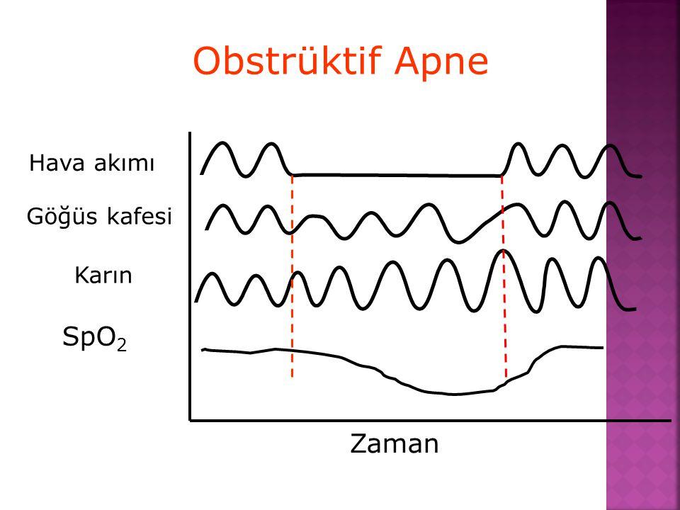 Obstrüktif Apne Hava akımı Göğüs kafesi Karın SpO2 Zaman