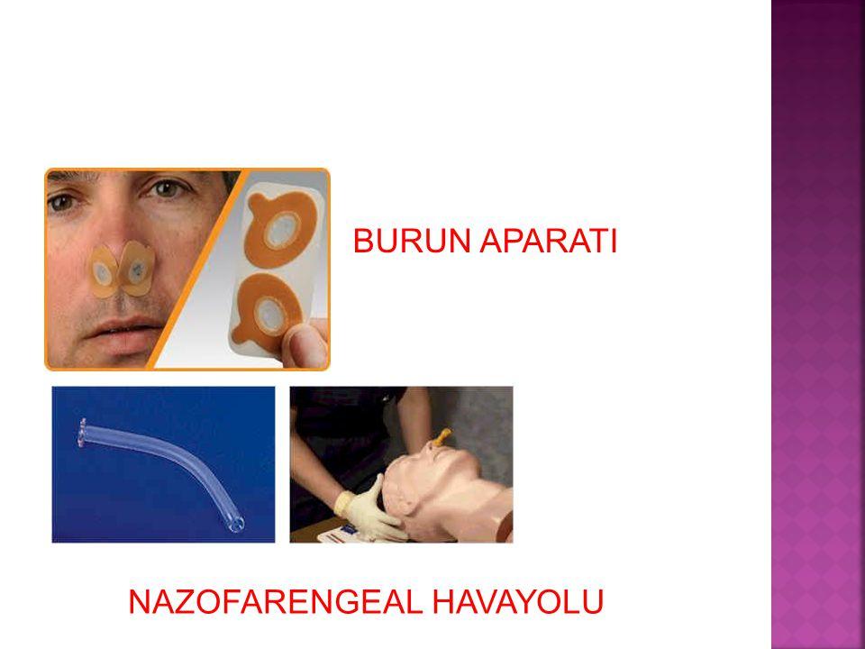 BURUN APARATI NAZOFARENGEAL HAVAYOLU