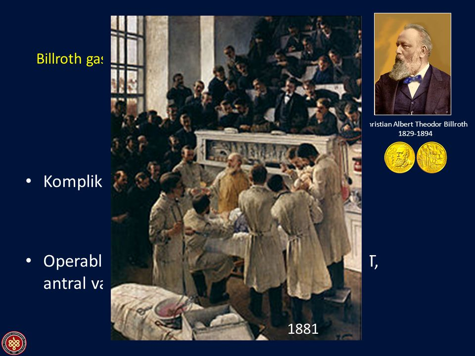 Billroth gastroenterostomi endikasyonları