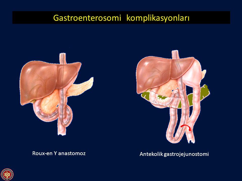 Gastroenterosomi komplikasyonları