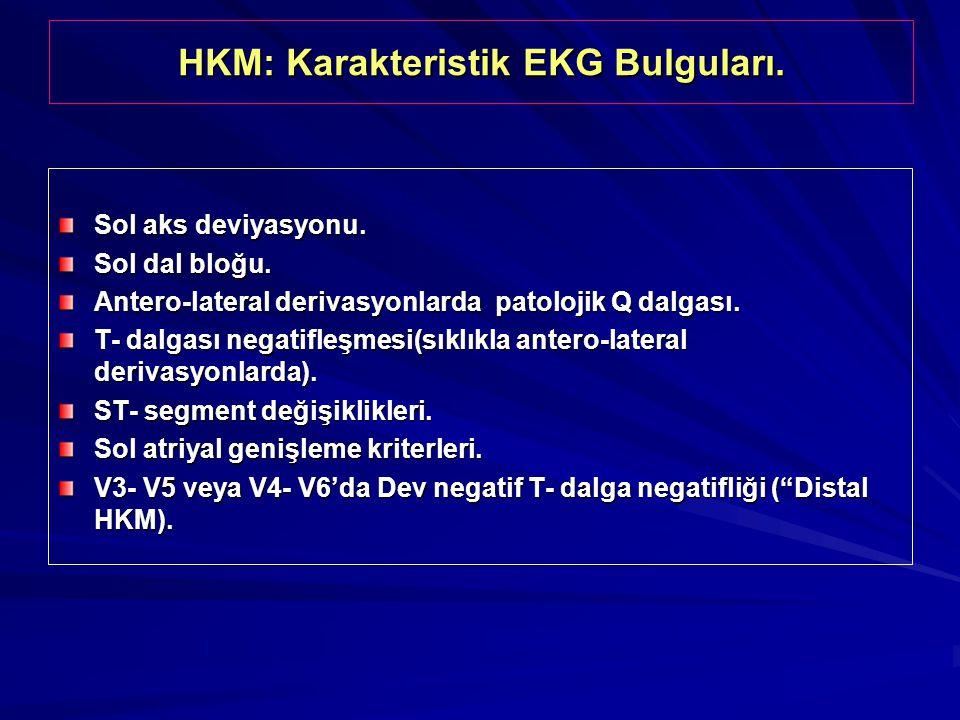 HKM: Karakteristik EKG Bulguları.