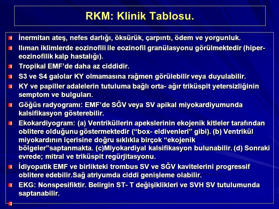 RKM: Klinik Tablosu. İnermitan ateş, nefes darlığı, öksürük, çarpıntı, ödem ve yorgunluk.