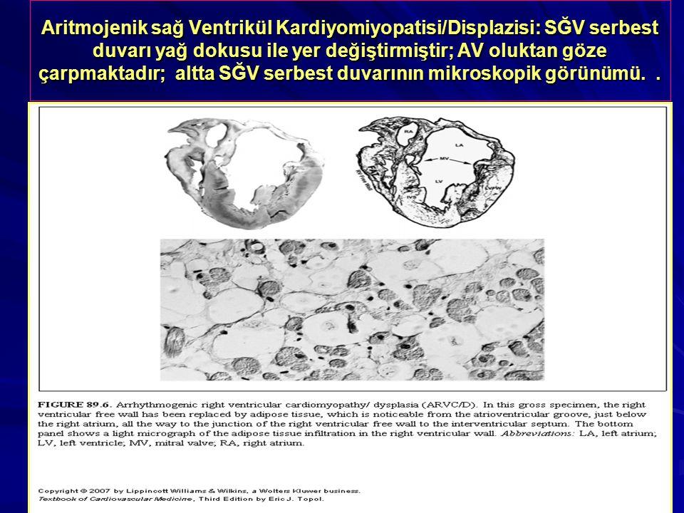 Aritmojenik sağ Ventrikül Kardiyomiyopatisi/Displazisi: SĞV serbest duvarı yağ dokusu ile yer değiştirmiştir; AV oluktan göze çarpmaktadır; altta SĞV serbest duvarının mikroskopik görünümü.