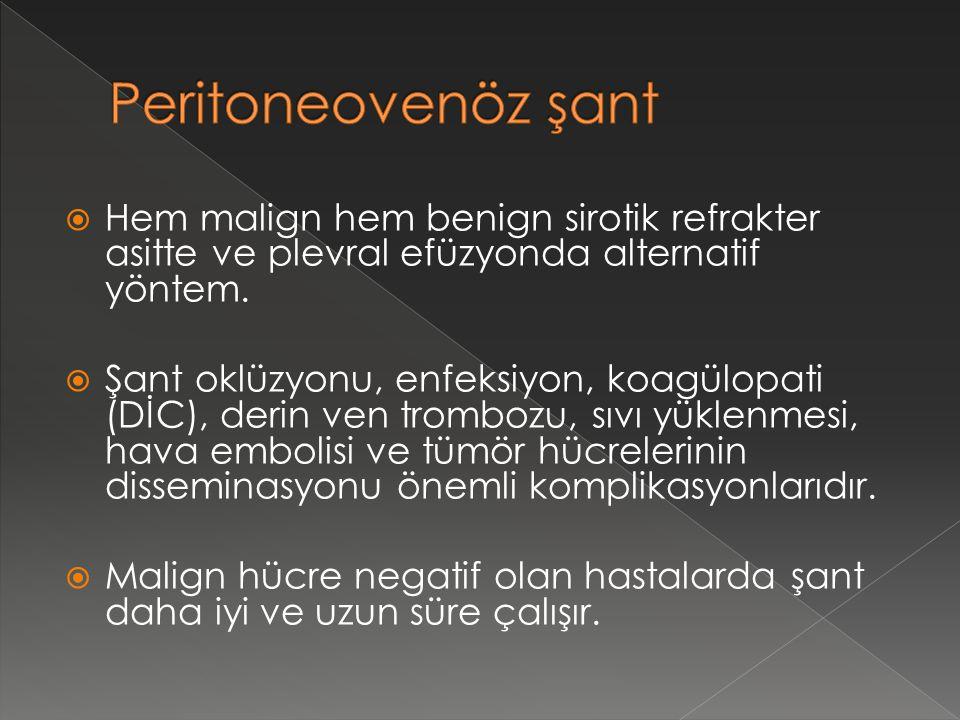 Peritoneovenöz şant Hem malign hem benign sirotik refrakter asitte ve plevral efüzyonda alternatif yöntem.