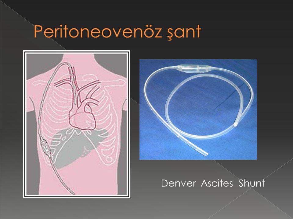 Peritoneovenöz şant Denver Ascites Shunt