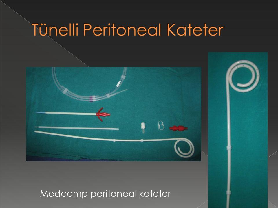 Tünelli Peritoneal Kateter