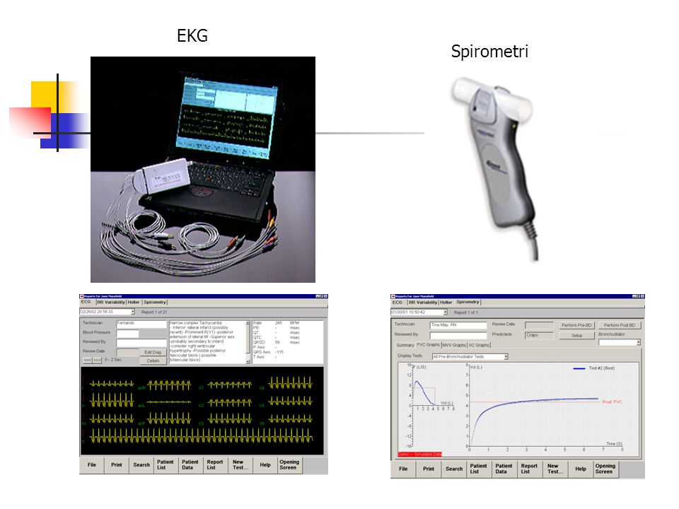 EKG Spirometri