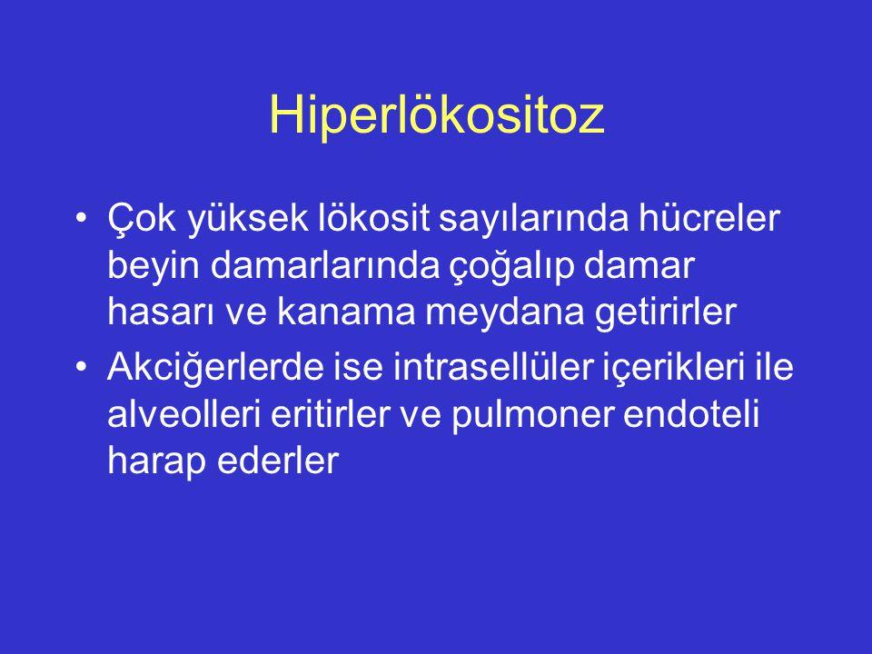 Hiperlökositoz Çok yüksek lökosit sayılarında hücreler beyin damarlarında çoğalıp damar hasarı ve kanama meydana getirirler.