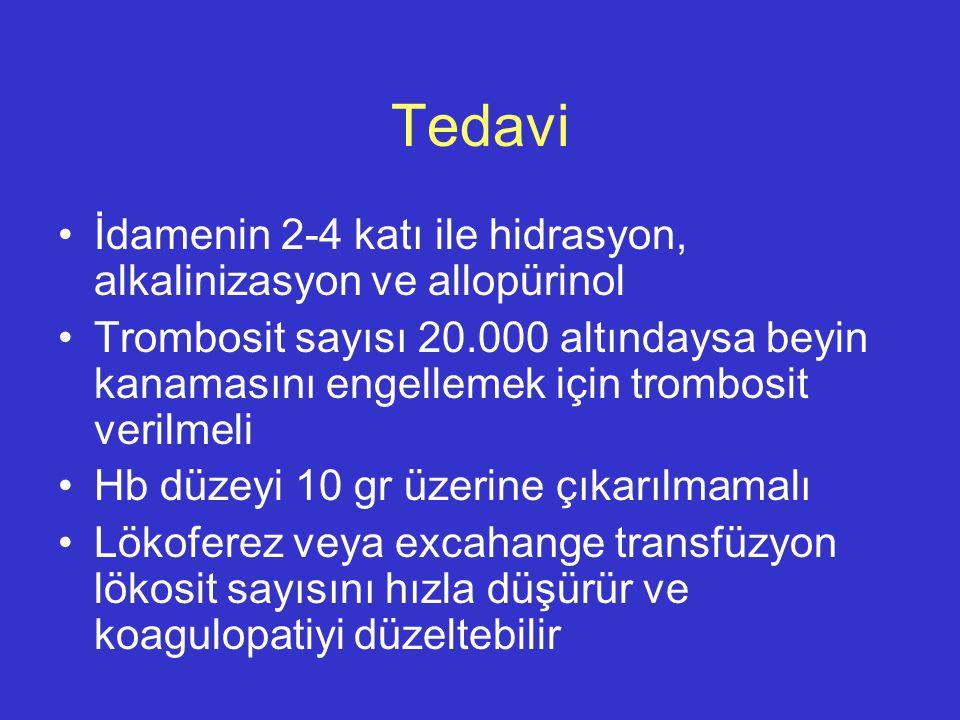 Tedavi İdamenin 2-4 katı ile hidrasyon, alkalinizasyon ve allopürinol
