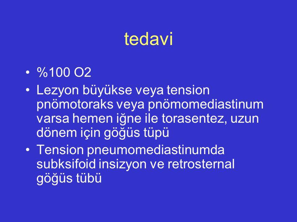 tedavi %100 O2. Lezyon büyükse veya tension pnömotoraks veya pnömomediastinum varsa hemen iğne ile torasentez, uzun dönem için göğüs tüpü.