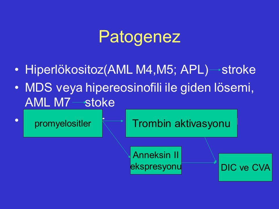 Patogenez Hiperlökositoz(AML M4,M5; APL) stroke